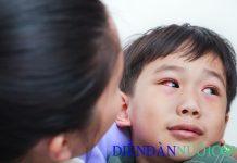 Bệnh đau mắt đỏ ở trẻ em, nguyên nhân và cách phòng tránh