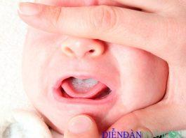 Bệnh nấm lưỡi ở trẻ em